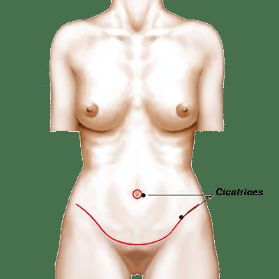 Maigrir du ventre avec l'opération de plastie abdominale à Rennes