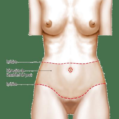 Retendre la peau du ventre avec le Bodylift
